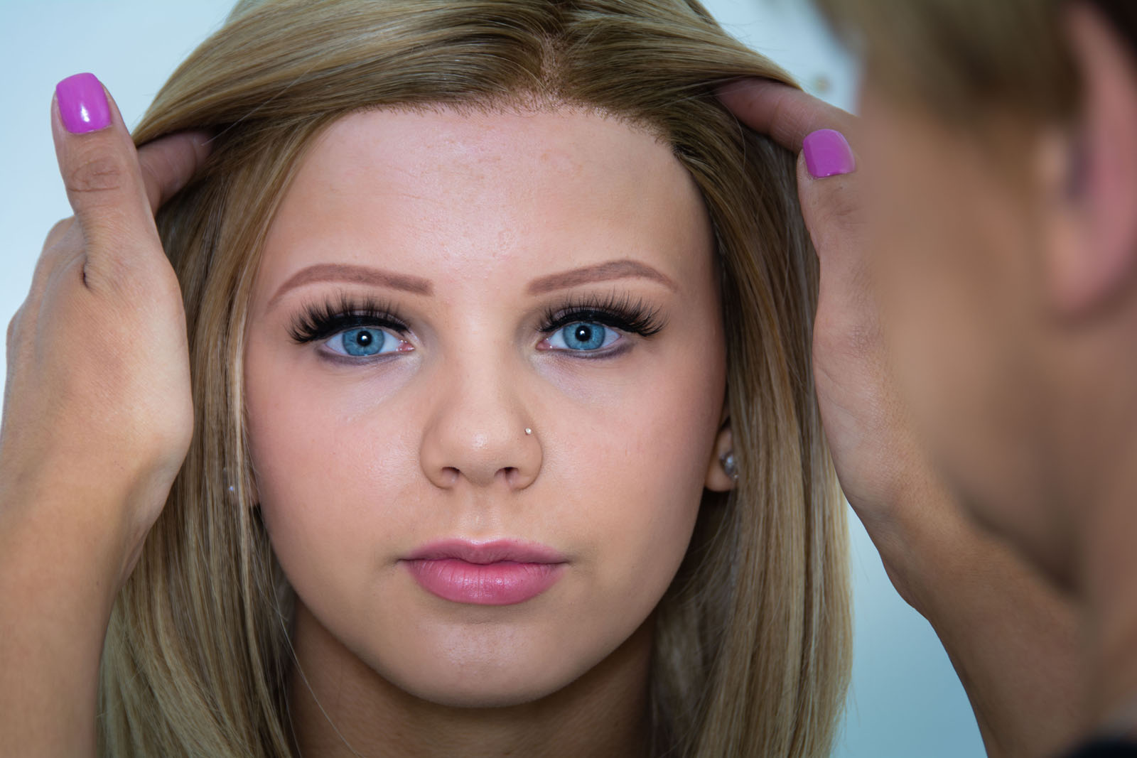 Alopecia sufferer Charley photographed by Bout Yeh photographers Belfast - press release page